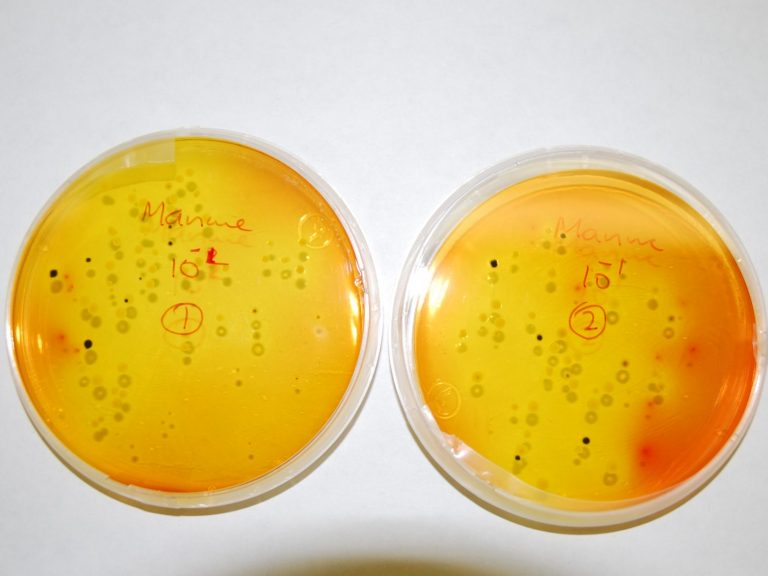 Agar plates with microbe colonies growing